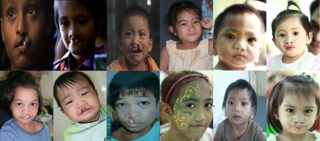 operation smile philippines